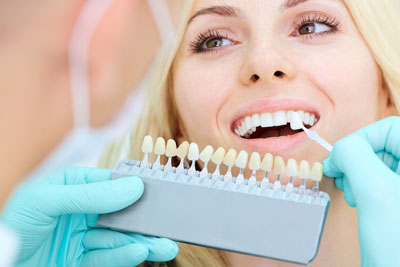 A Veneers Dentist Walks You Through The Steps Of Dental Veneers Placement