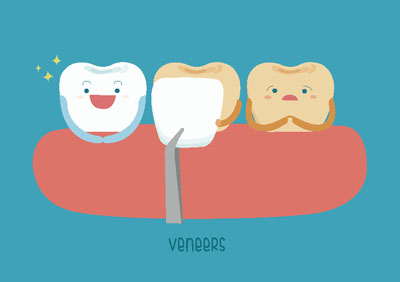 How Long Do Veneers Last On Front Teeth?